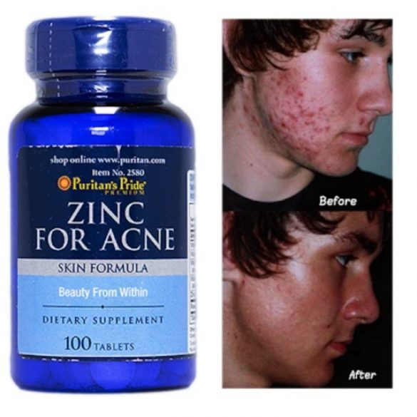 Zinc For acne Pattanás elleni komplex tabletta 100 db